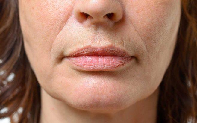 Зморшки навколо губ: чому з'являються і способи корекції